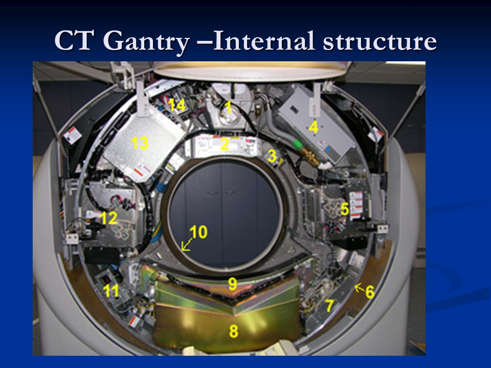 CT Gantry –Internal structure