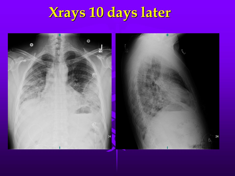 Xrays 10 days later
