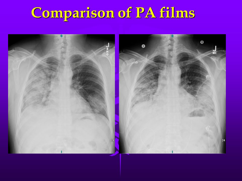 Comparison of PA films