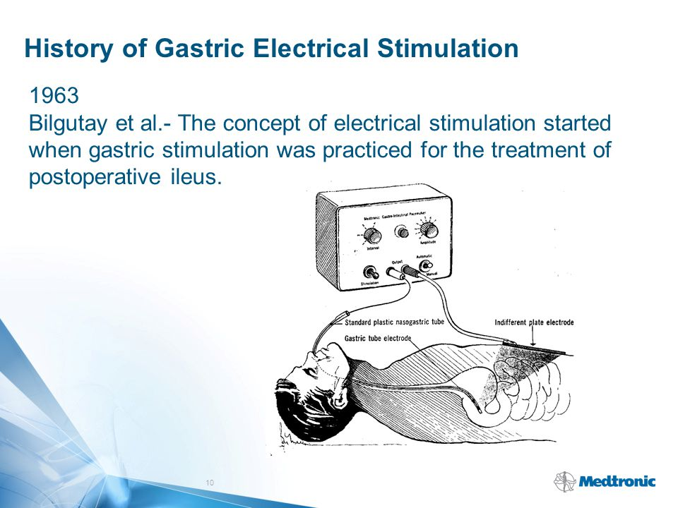 History of Gastric Electrical Stimulation