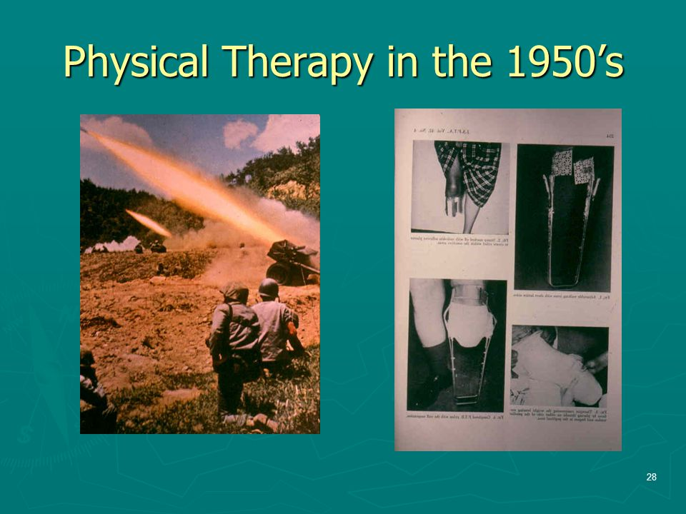 Physical Therapy in the 1950's