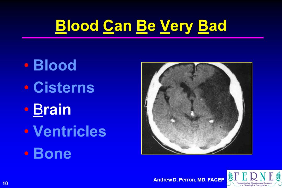 Blood Can Be Very Bad Blood Cisterns Brain Ventricles Bone