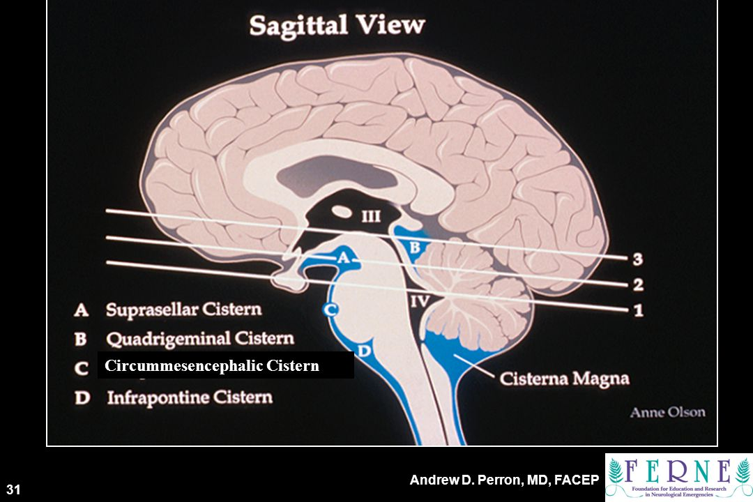 3rd Key Level Sagittal View