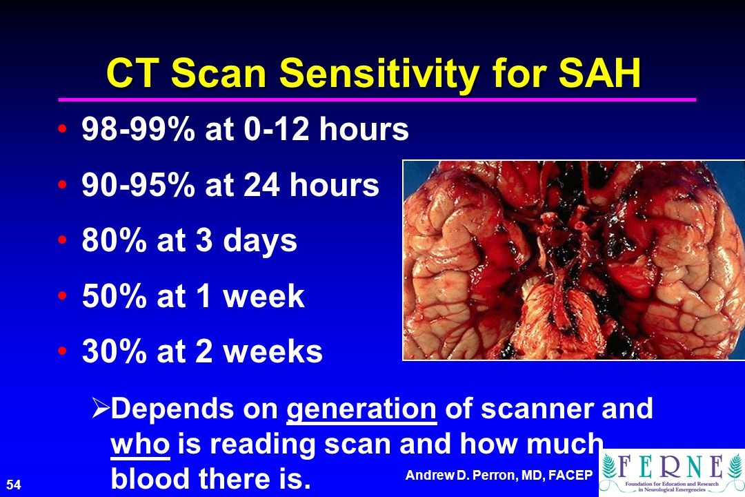 CT Scan Sensitivity for SAH