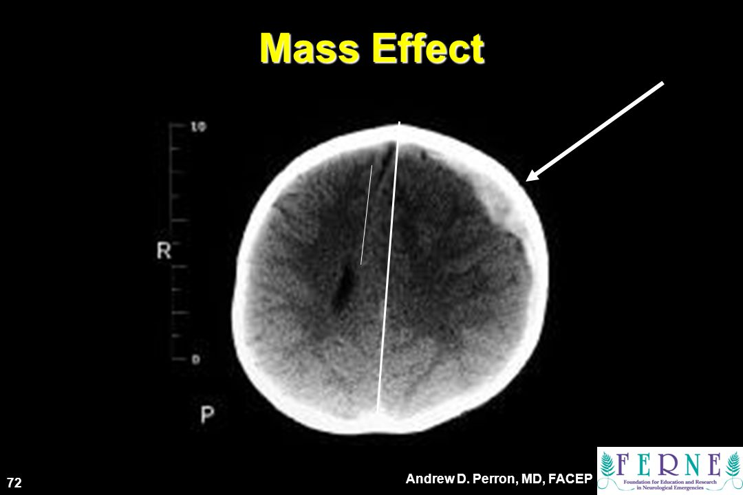 Mass Effect 72 Andrew D. Perron, MD, FACEP