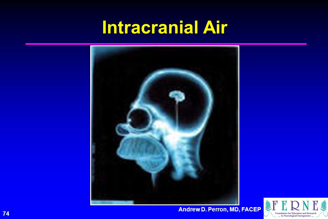 Intracranial Air