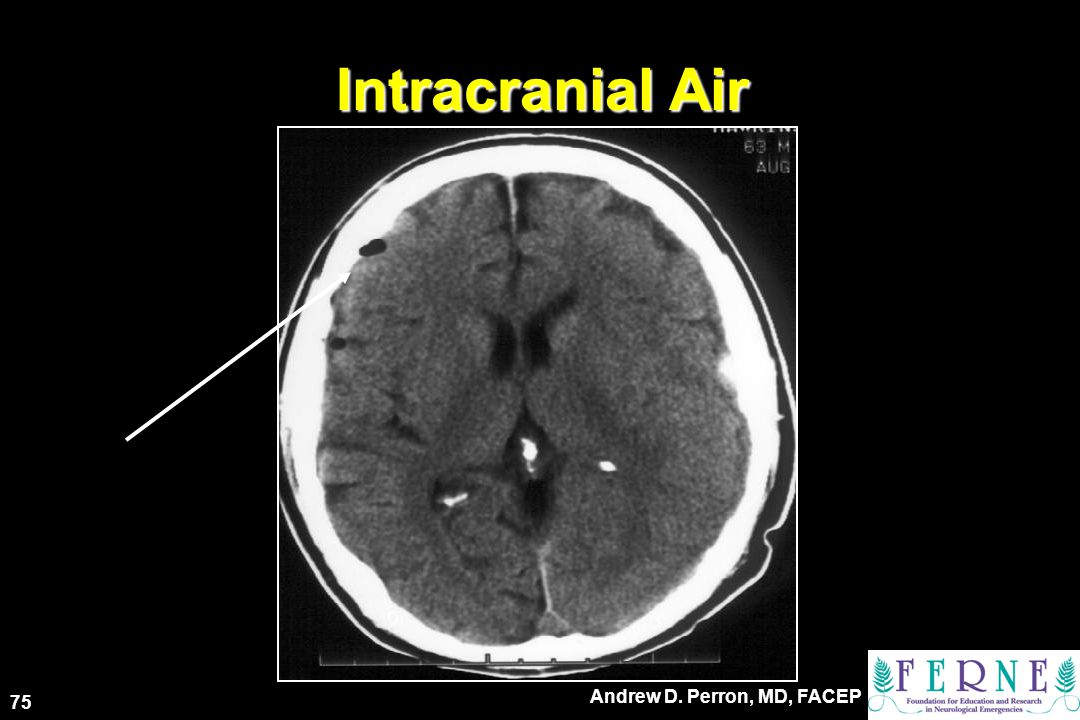 Intracranial Air 75 Andrew D. Perron, MD, FACEP