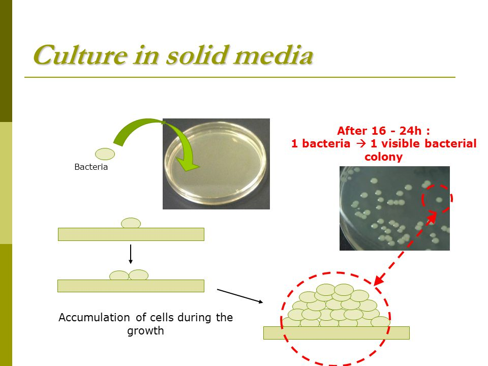 1 bacteria  1 visible bacterial colony