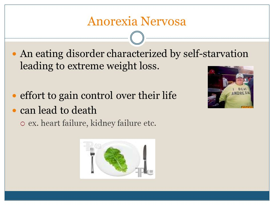 Anorexia Nervosa An eating disorder characterized by self-starvation leading to extreme weight loss.