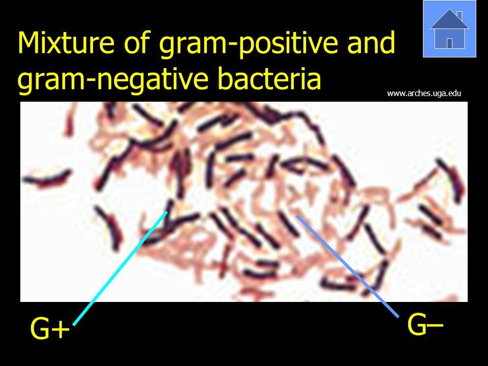 Mixture of gram-positive and gram-negative bacteria