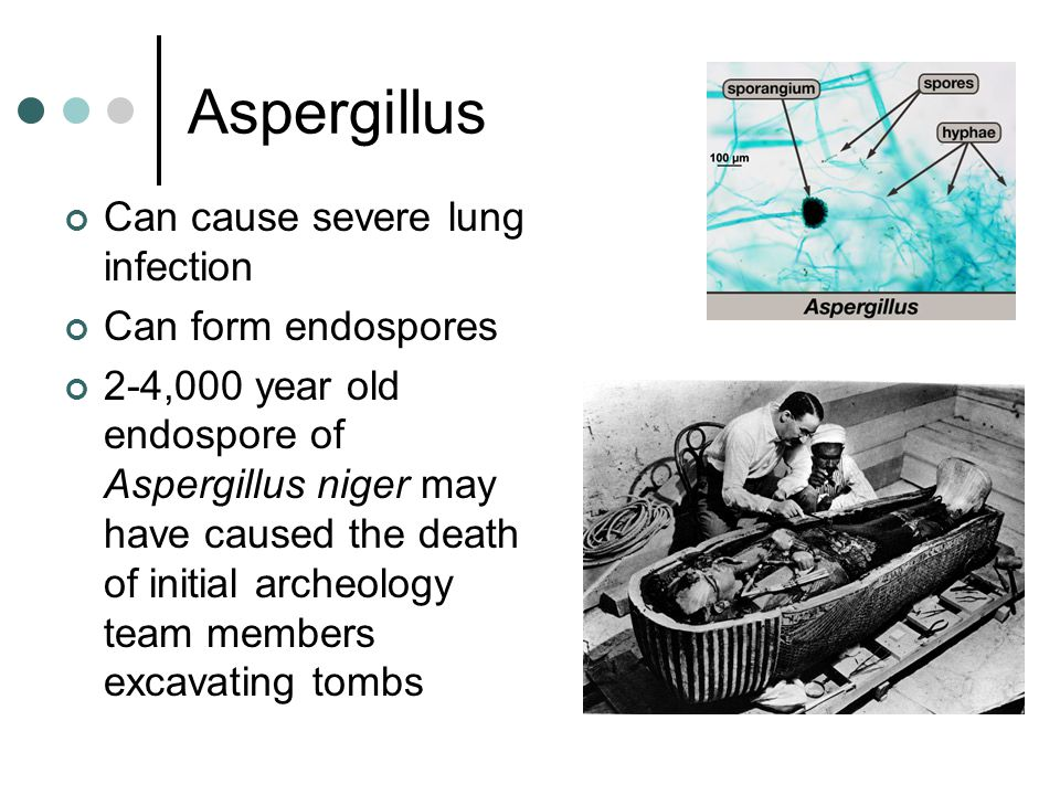 Aspergillus Can cause severe lung infection Can form endospores