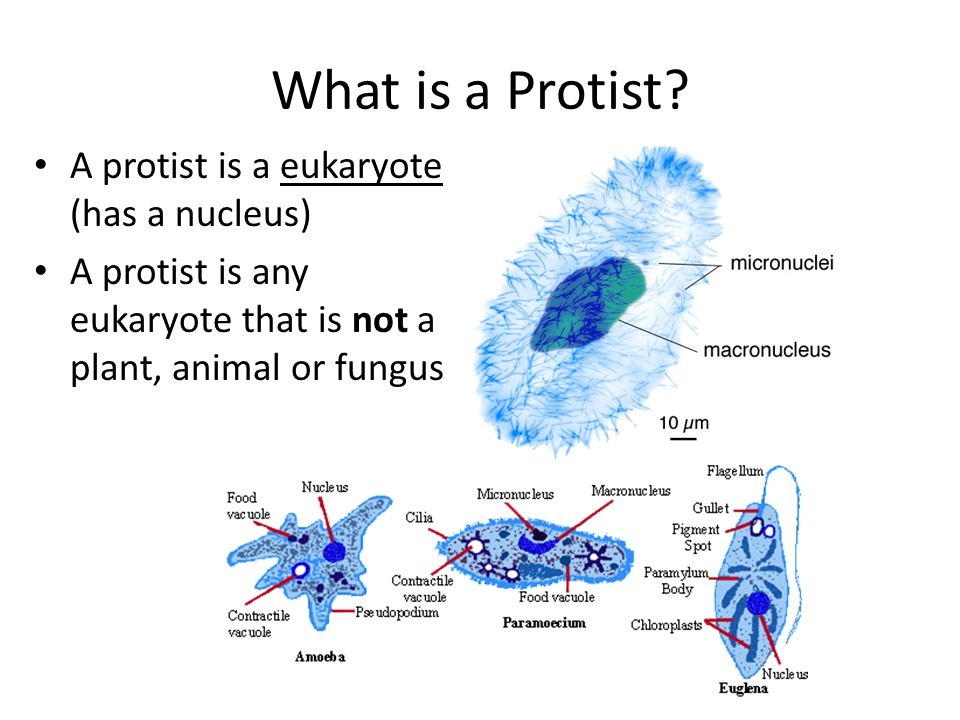 What is a Protist A protist is a eukaryote (has a nucleus)