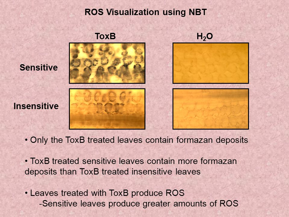 ROS Visualization using NBT