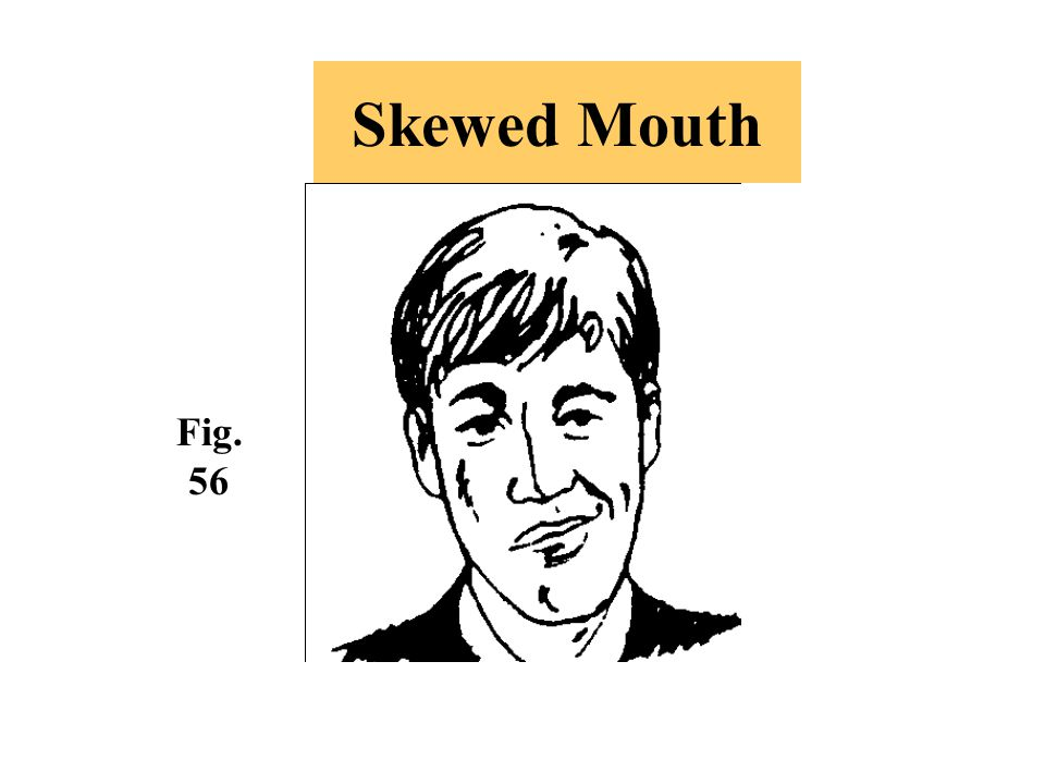 Skewed Mouth Fig. 56 -A distorted version of the smile that indicates sarcasm.