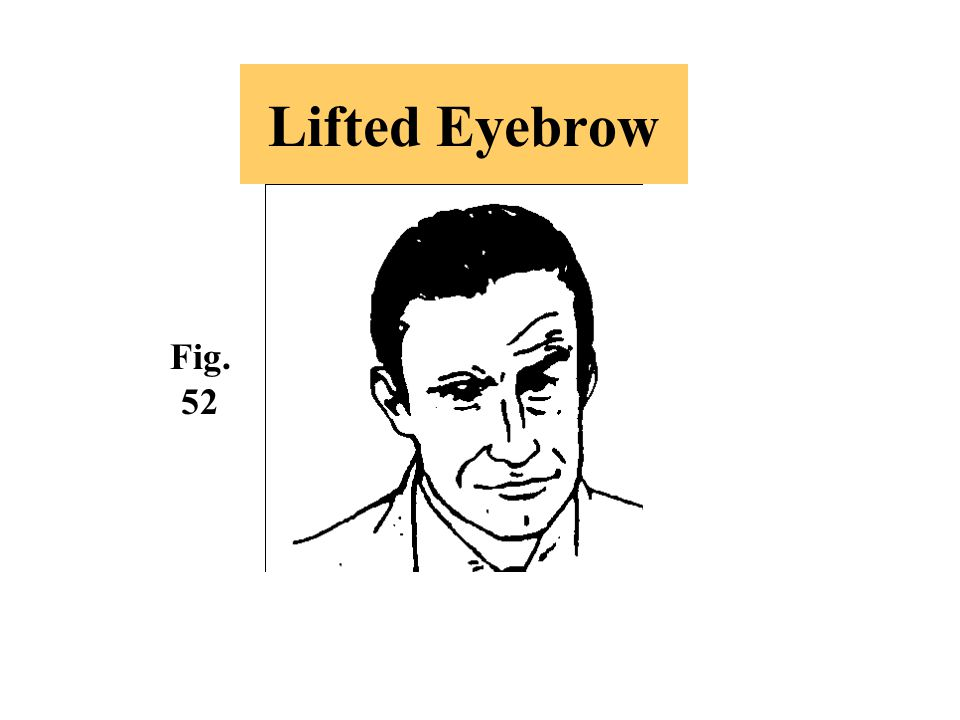 Lifted Eyebrow Fig. 52.