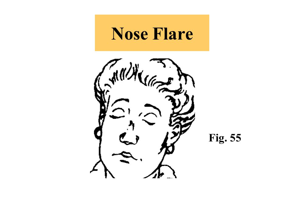 Nose Flare Fig. 55 -An indication of agitation or indignation (which might border on anger).
