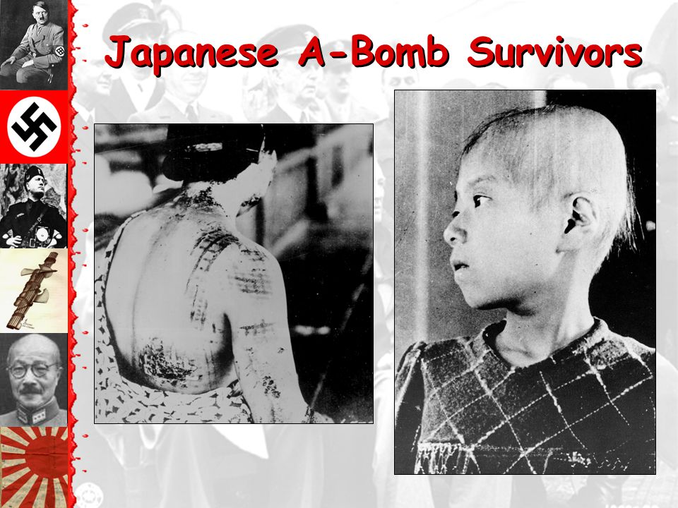 Japanese A-Bomb Survivors