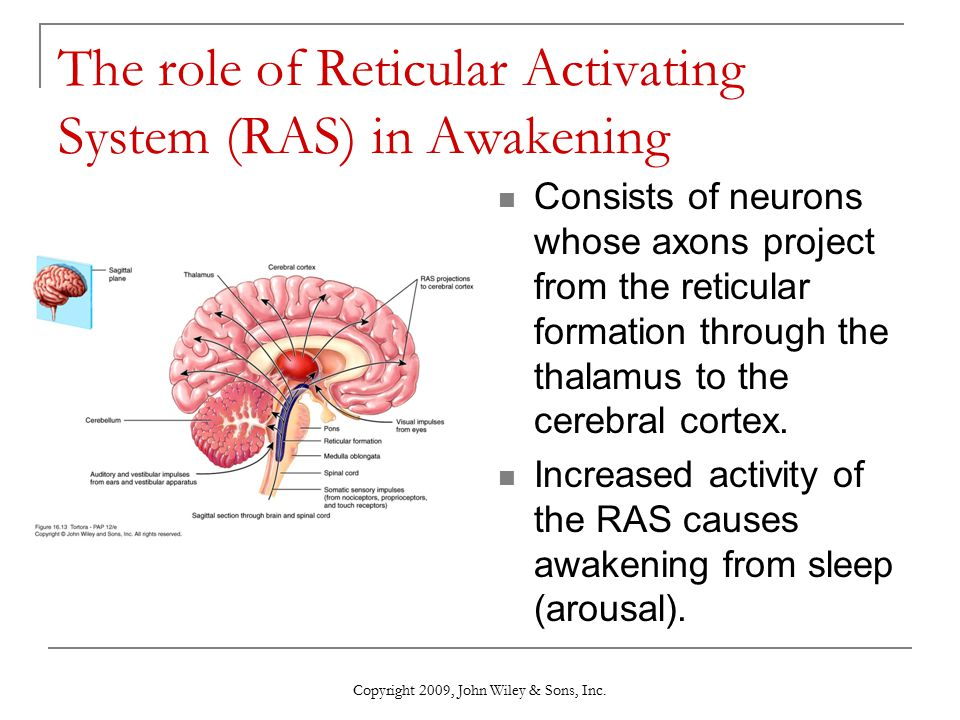 The role of Reticular Activating System (RAS) in Awakening
