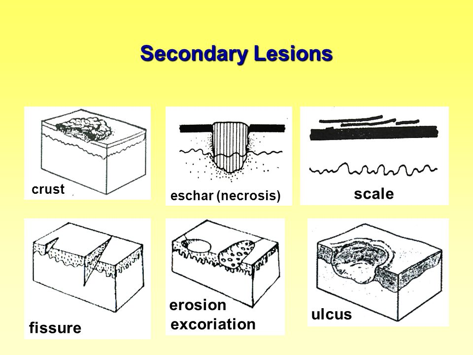 Secondary Lesions scale erosion ulcus excoriation fissure crust