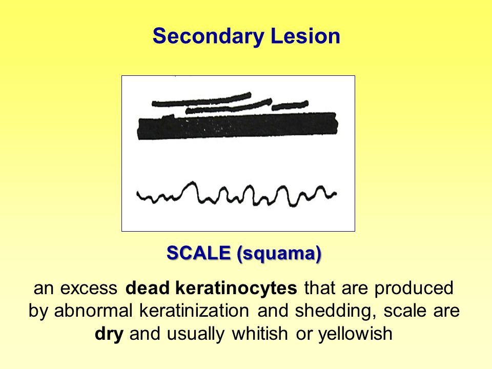 Secondary Lesion SCALE (squama)