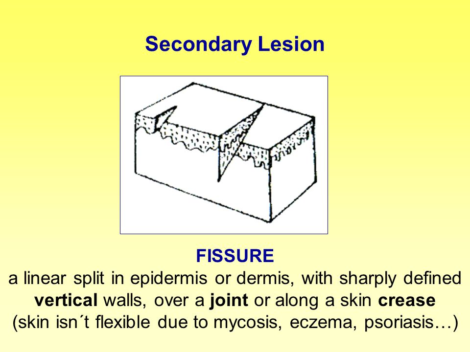 Secondary Lesion