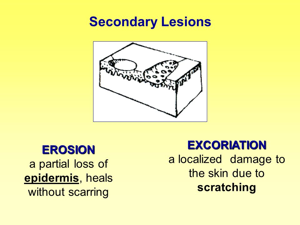 Secondary Lesions EXCORIATION a localized damage to the skin due to scratching.