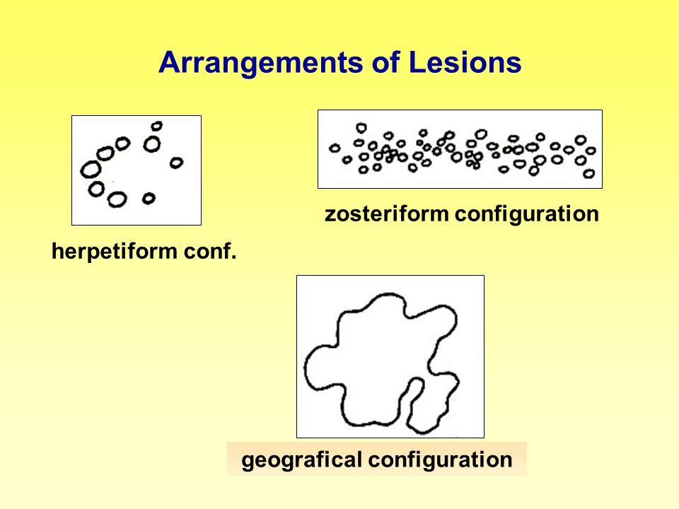 Arrangements of Lesions