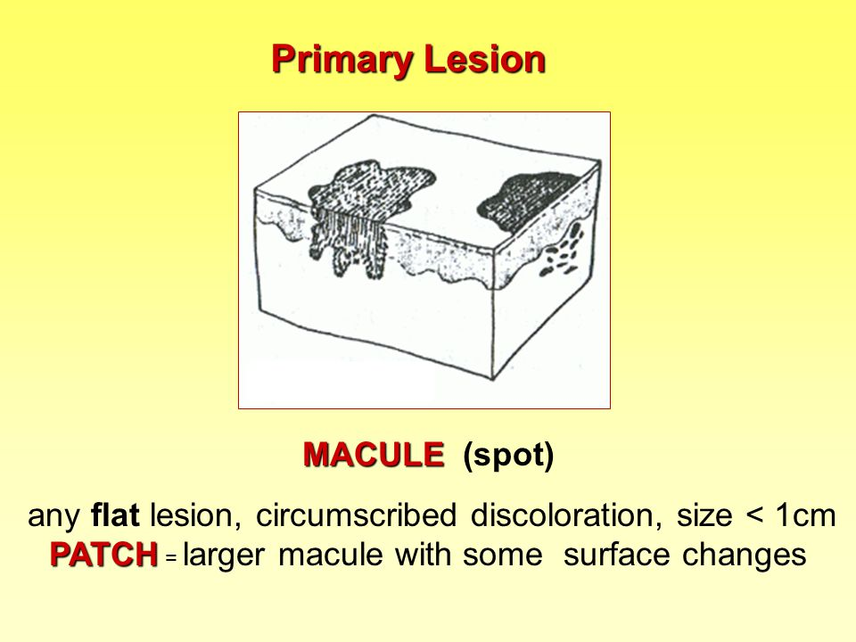 Primary Lesion MACULE (spot)