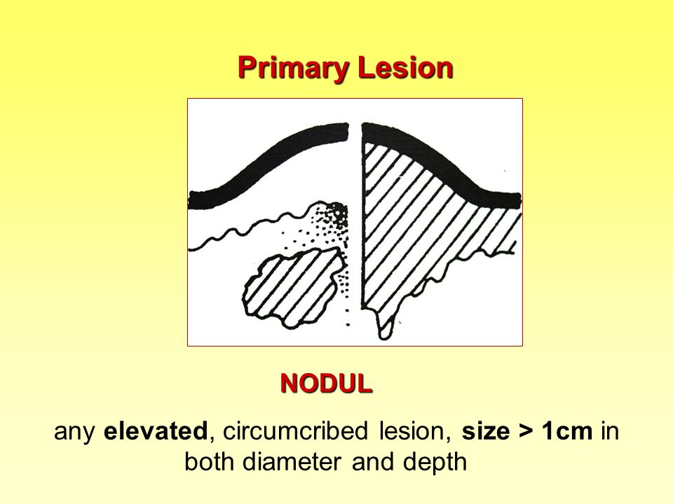 Primary Lesion NODUL any elevated, circumcribed lesion, size > 1cm in both diameter and depth