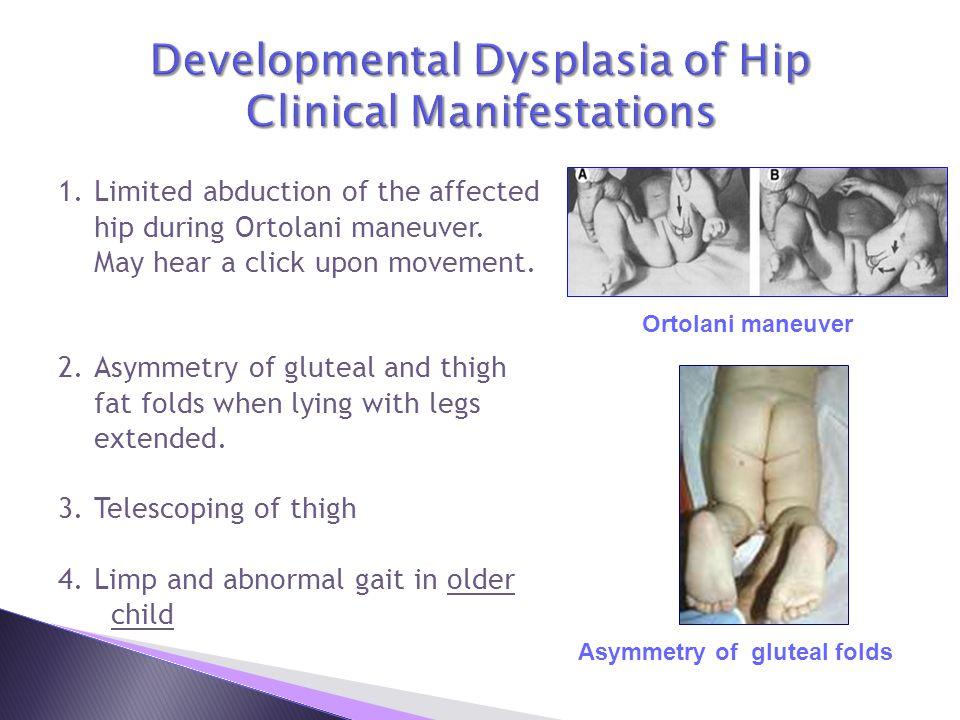 Developmental Dysplasia of Hip Clinical Manifestations