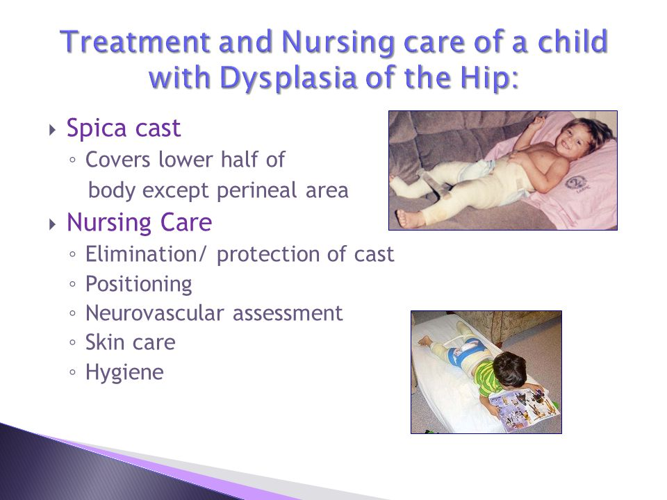 Treatment and Nursing care of a child with Dysplasia of the Hip: