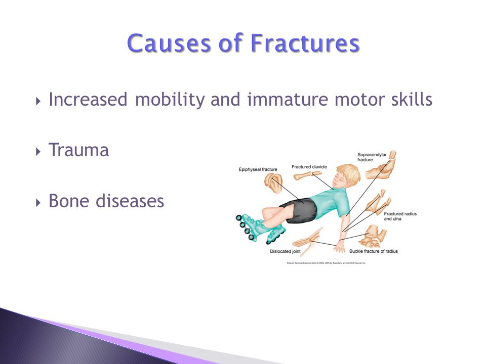 Causes of Fractures Increased mobility and immature motor skills