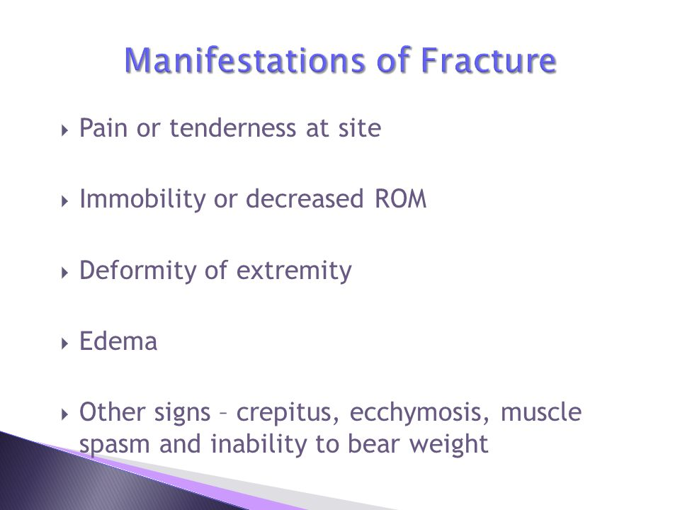 Manifestations of Fracture