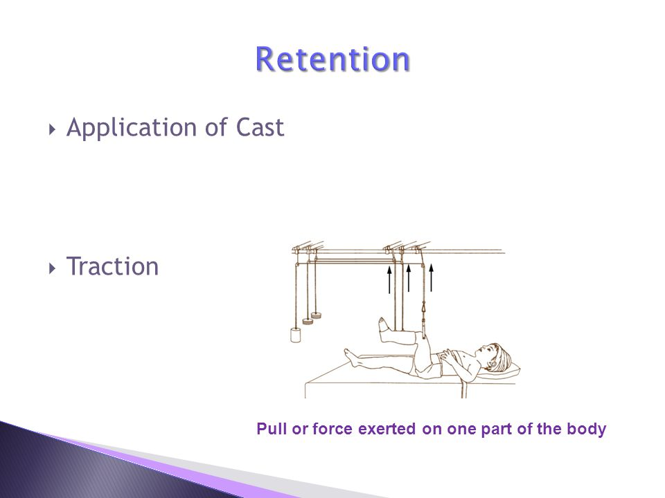 Retention Application of Cast Traction