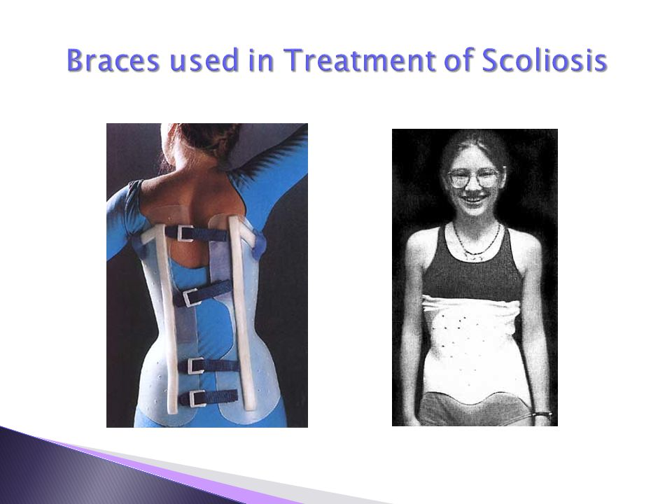 Braces used in Treatment of Scoliosis