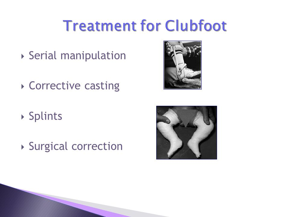Treatment for Clubfoot