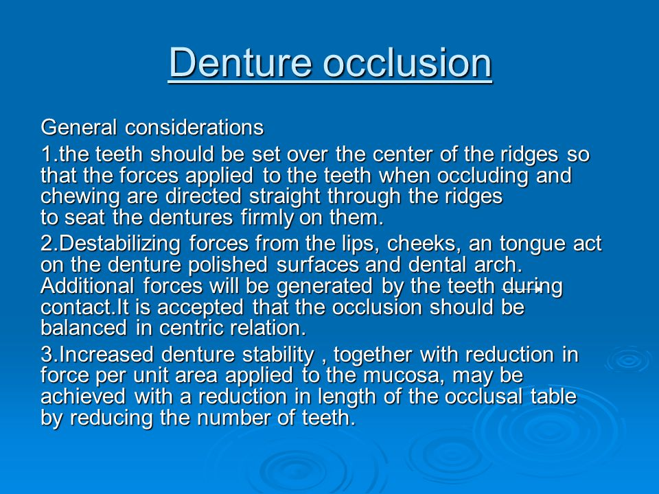 Denture occlusion General considerations