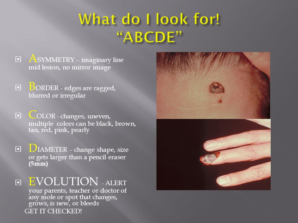 What do I look for! ABCDE