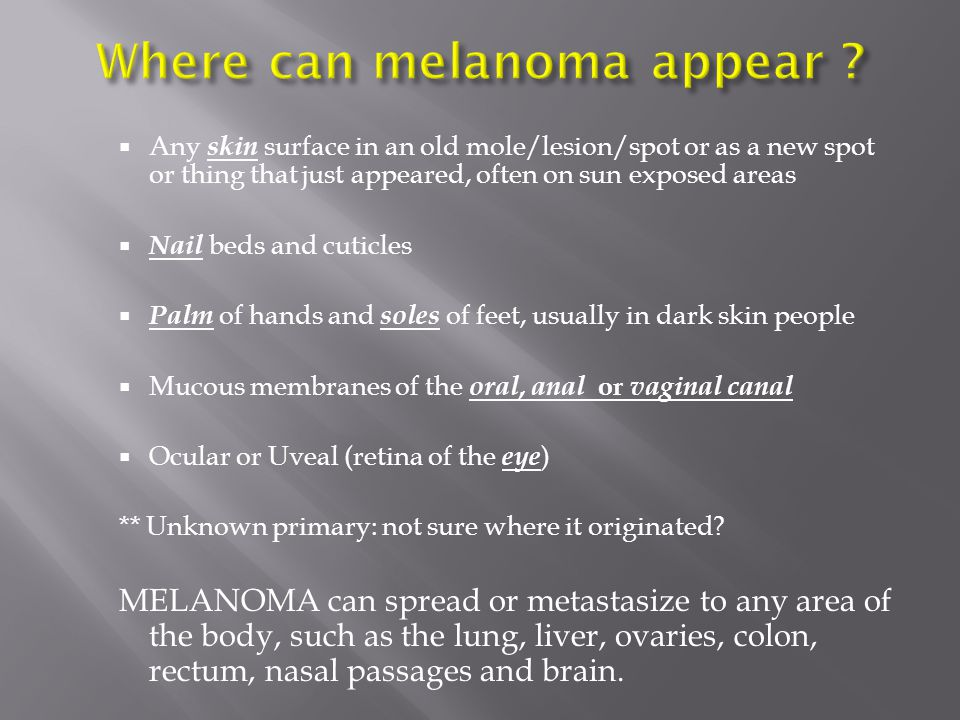 Where can melanoma appear