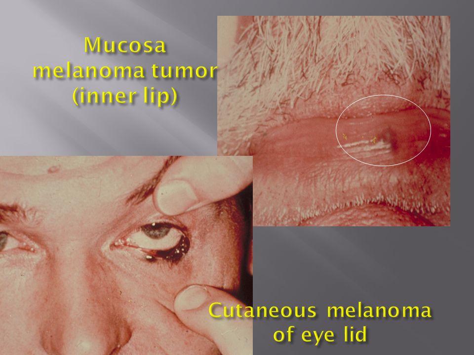 Mucosa melanoma tumor (inner lip)