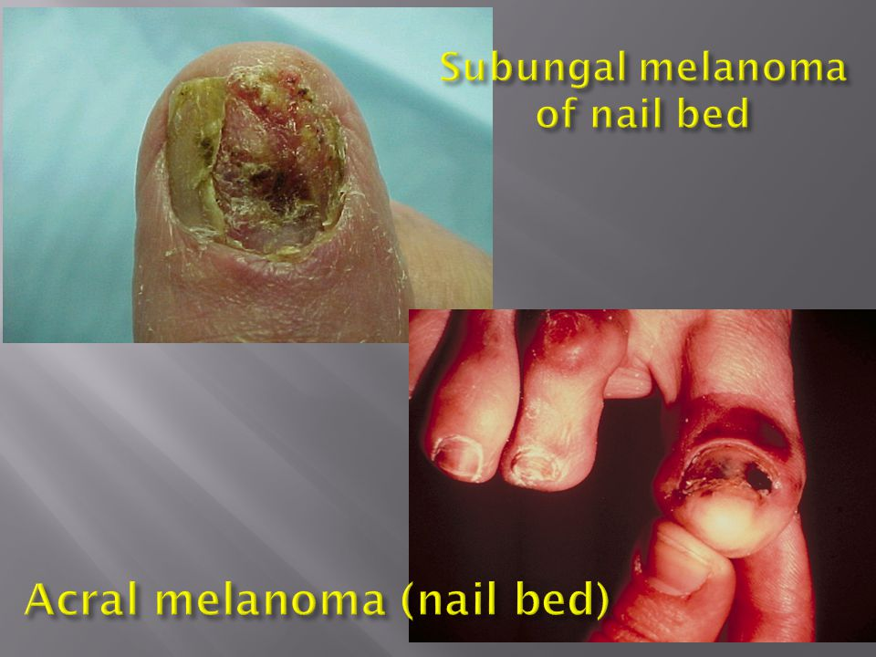 Subungal melanoma of nail bed