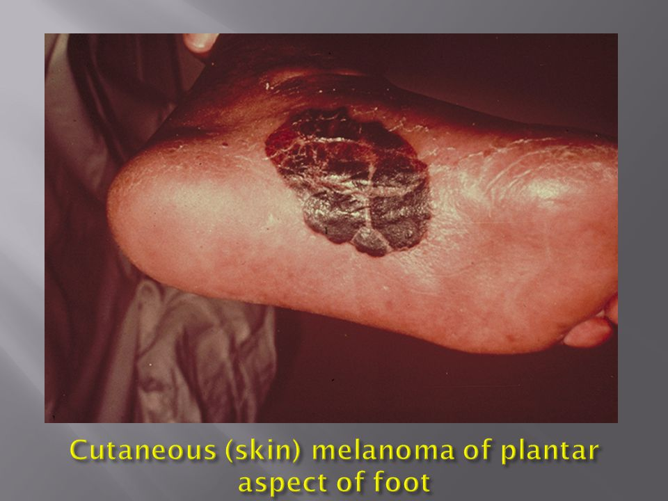 Cutaneous (skin) melanoma of plantar aspect of foot