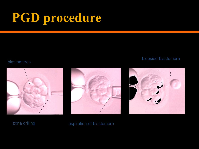 PGD procedure aspiration of blastomere biopsied blastomere blastomeres