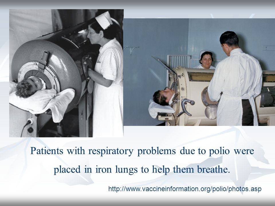 Patients with respiratory problems due to polio were placed in iron lungs to help them breathe.