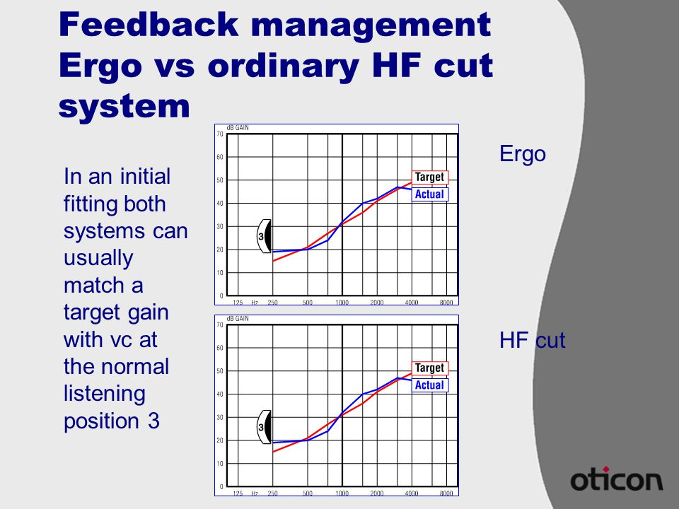 Feedback management Ergo vs ordinary HF cut system