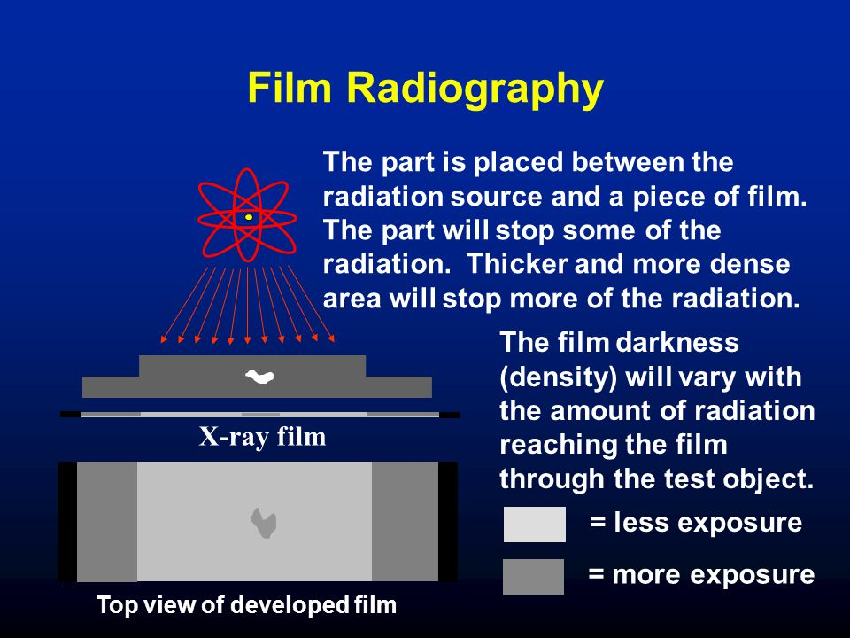 Film Radiography