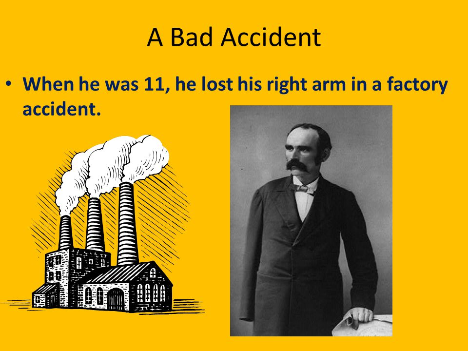 A Bad Accident When he was 11, he lost his right arm in a factory accident.