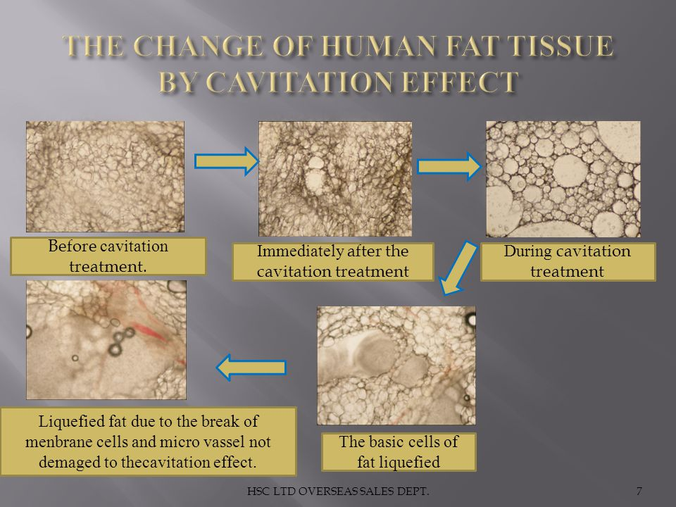 THE CHANGE OF HUMAN FAT TISSUE BY CAVITATION EFFECT