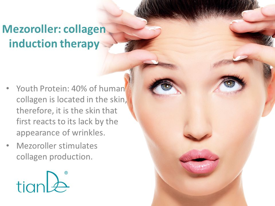 Mezoroller: collagen induction therapy
