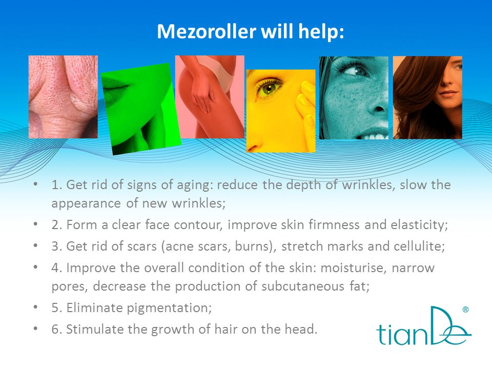 Mezoroller will help: 1. Get rid of signs of aging: reduce the depth of wrinkles, slow the appearance of new wrinkles;